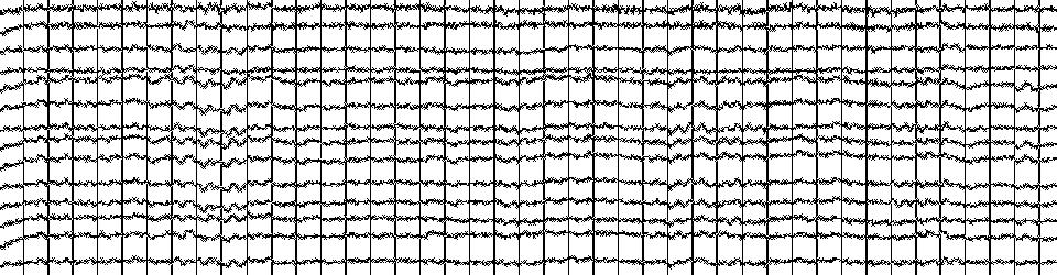 EEG Rohsignal
