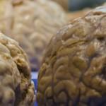 Die Falten des Gehirns